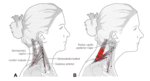 Diagram of neck anatomy showing bad posture